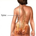 Spine showing scoliosis